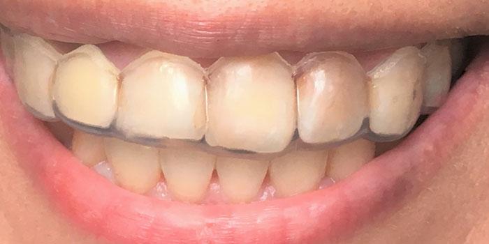 歯の黄ばみを取る裏技